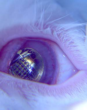 Contact Lenses with Integrated Circuitry